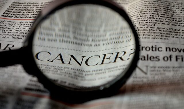 How To Live And Deal With Cancer